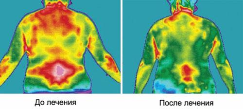 тепловизионная диагностика тела